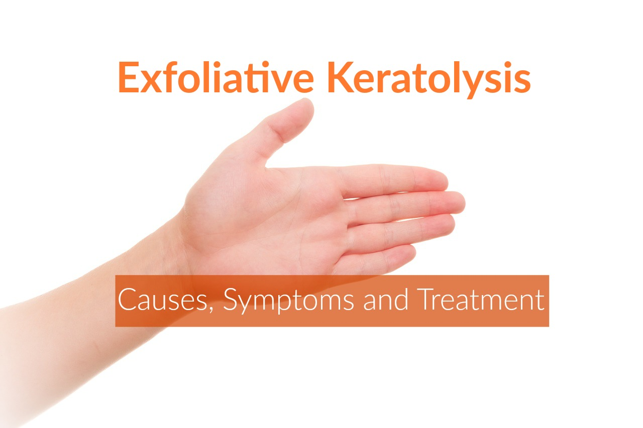 Exfoliative Keratolysis