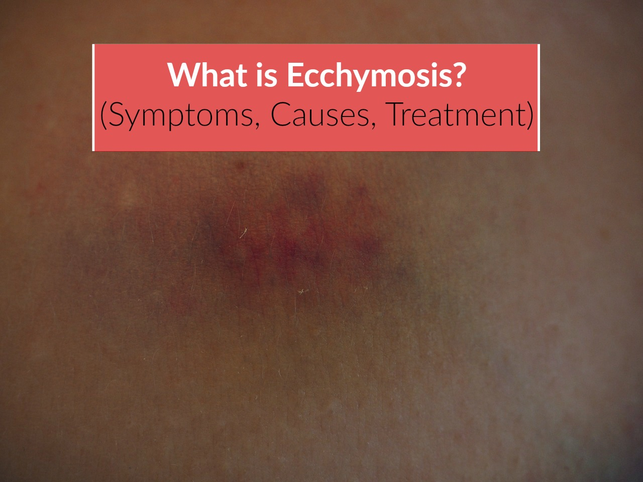 What is Ecchymosis