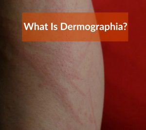 what is Dermographia