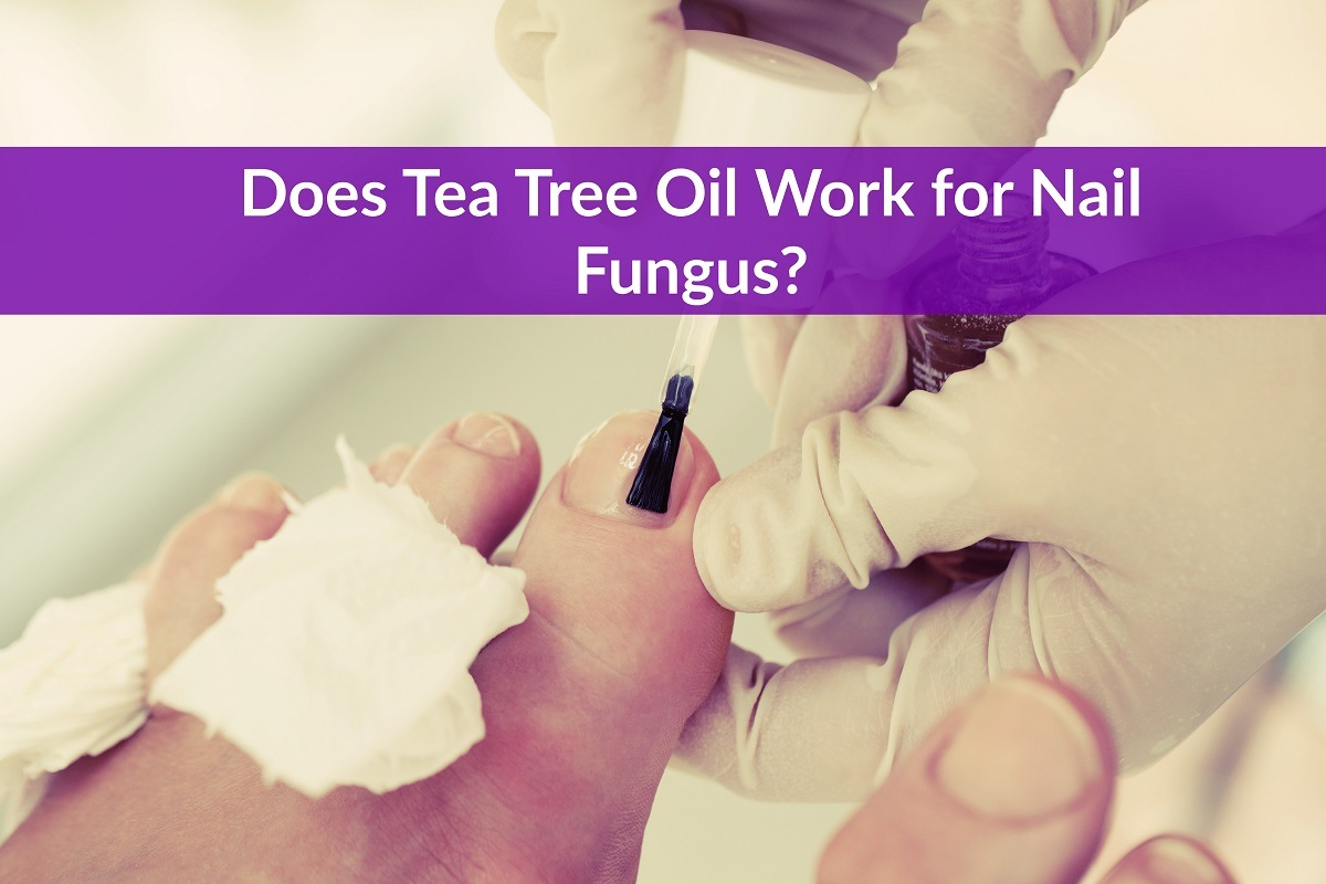 Does Tea Tree Oil Work for Nail Fungus? - The Healthy Apron