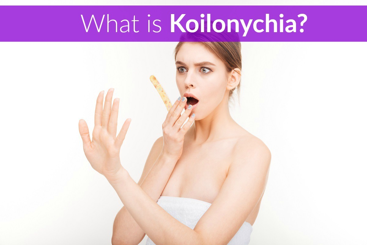 Koilonychia (Spoon Nails – Definition, Causes, Treatment) - The ...