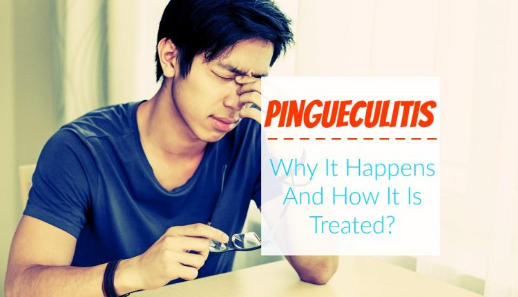 Pingueculitis - Why It Happens And How It Is Treated ...  Pingueculitis -...