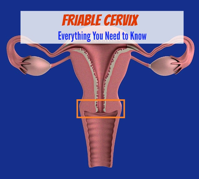 Friable Cervix - Everything You Need to Know