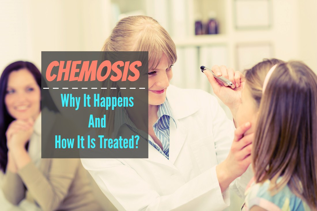 Chemosis Why It Happens And How It Is Treated