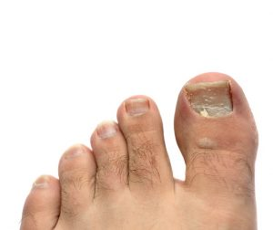 toes with a cracked and peeling toe